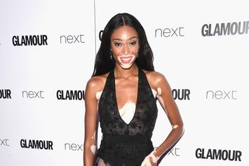 "Winnie Harlow Blasts Publication For Calling Her A ""Vitiligo Sufferer"""